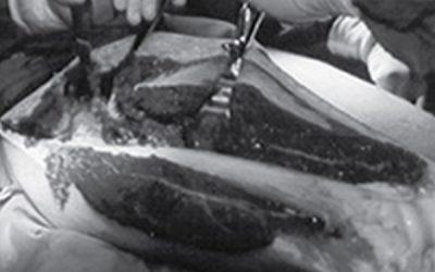 A cirurgia precoce dos pacientes com fratura da extremidade proximal do fêmur em uso de Clopidogrel é segura? Revisão sistemática, metanálise e meta-regressão