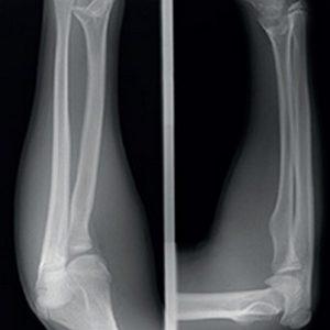 Conduta nas fraturas diafisárias dos ossos do antebraço no adulto